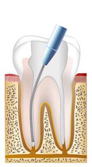 Root canal procedure step 2
