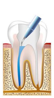 Root canal procedure step 3