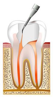 Root canal procedure step 4