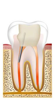 Root canal procedure step 5