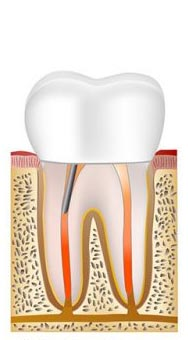 Root canal procedure step 6